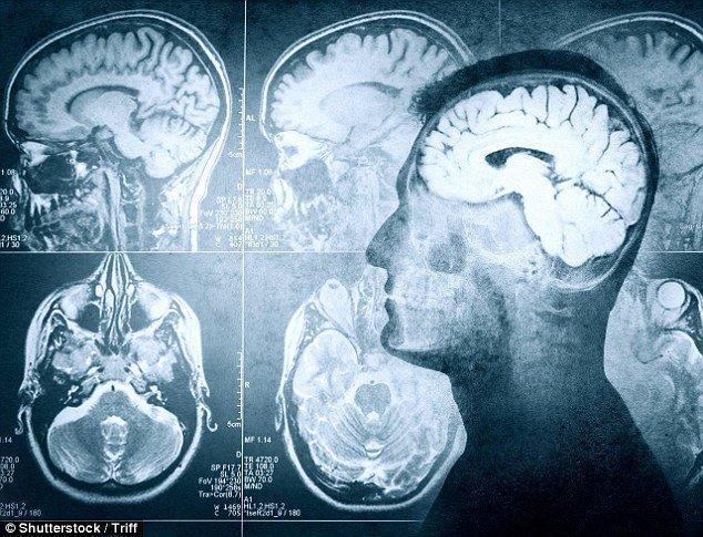 عوارض جبران ناپذیر بی خوابی بر عملکرد مغز