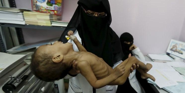 آمار رسمی ، هر 5 دقیقه یک کودک یمنی می میرد