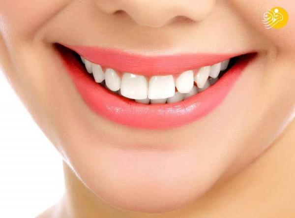 با این شیرینی جادویی دندان های خود را سفید کنید!